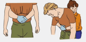 Удаление инор тела взрослые